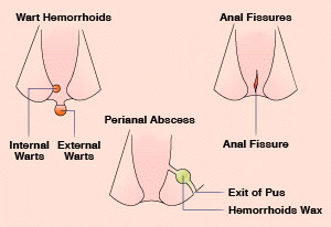 anal fissures and dairy